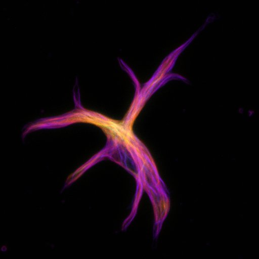 Goldfish astrocyte cell stained with SiR-tubulin