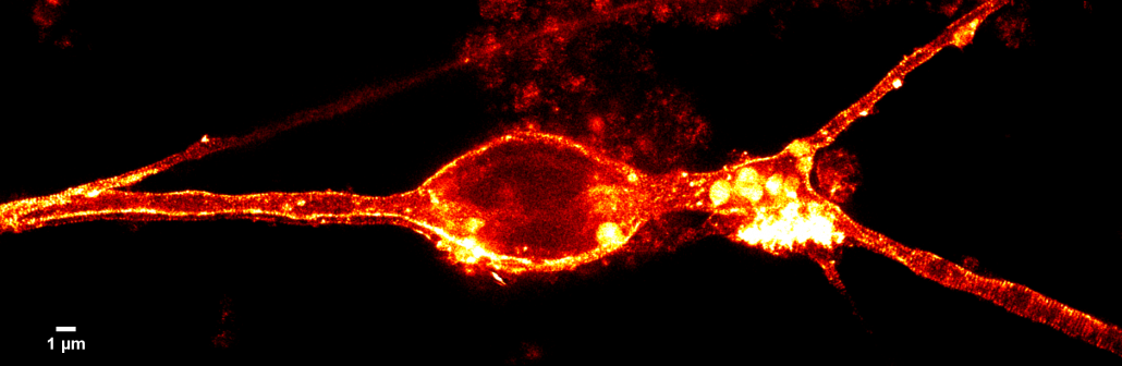 STED image of cerebellar granule cell (rat) stained with SiR-actin