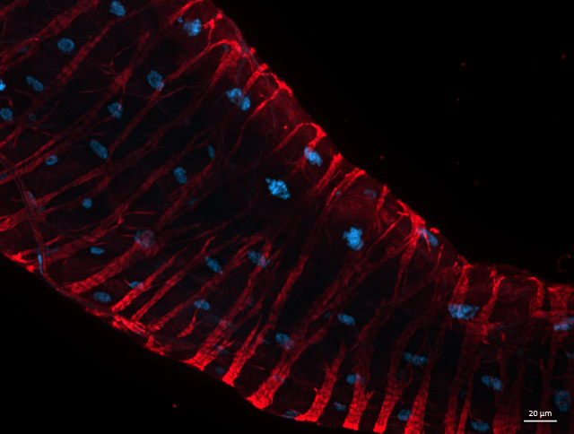 Drosophila hind gut stained with SiR-actin
