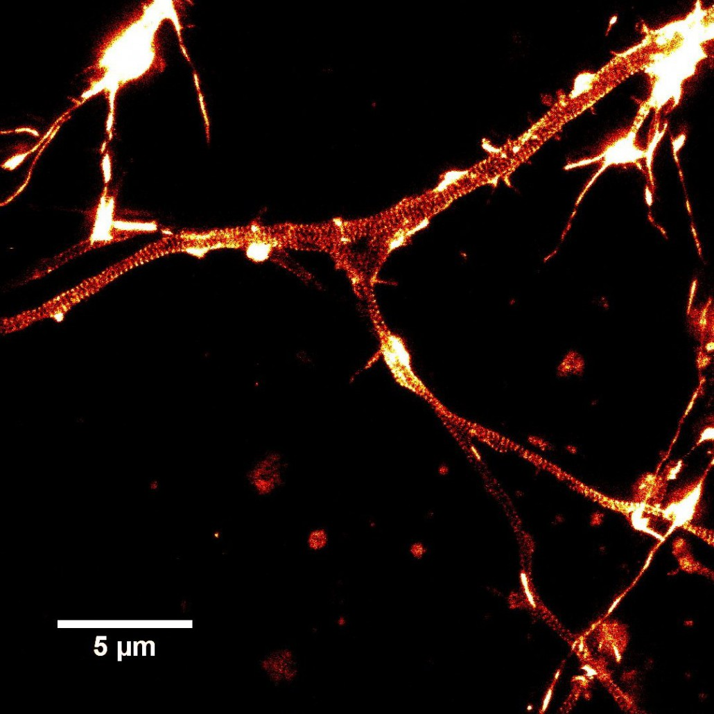 Rat hippocampal neurons stained with SiR-actin
