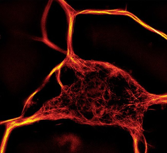 Rat cortex neuron stained with SiR-tubulin